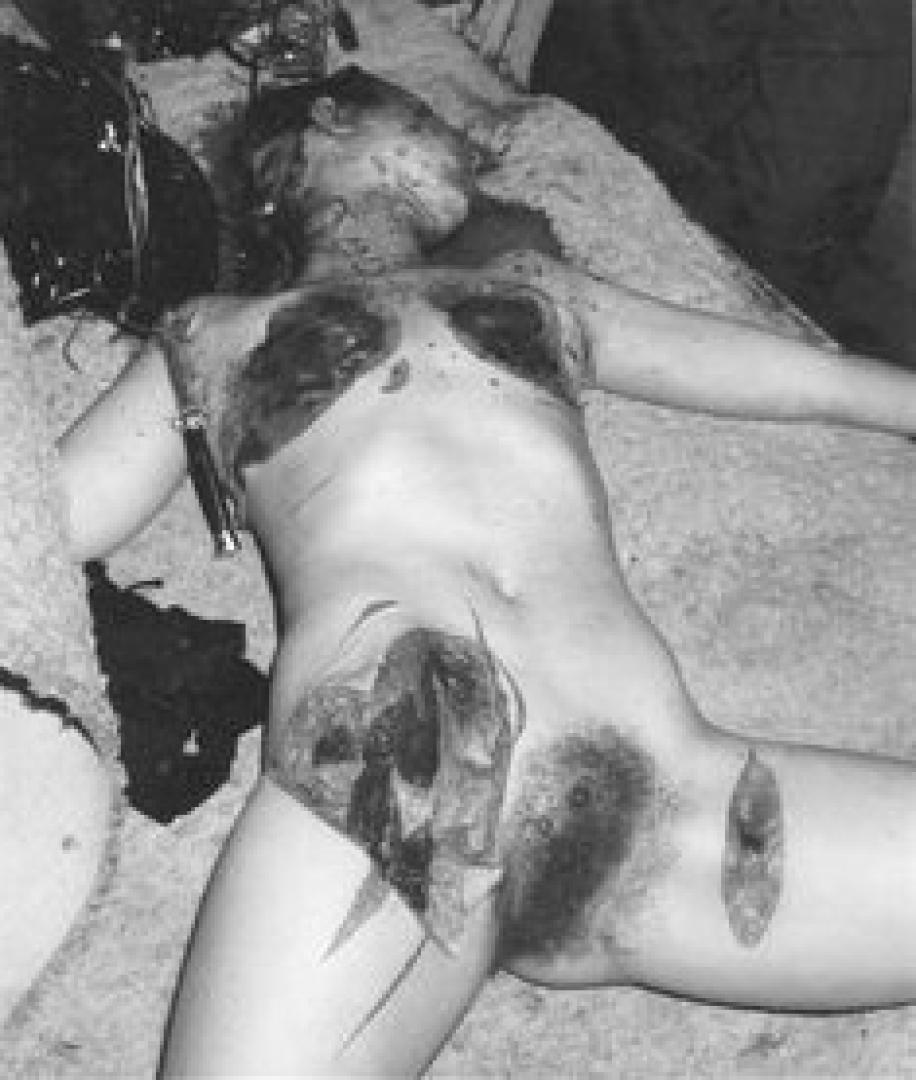 Richard Chase 4. kép